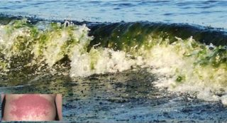 alga-tossica